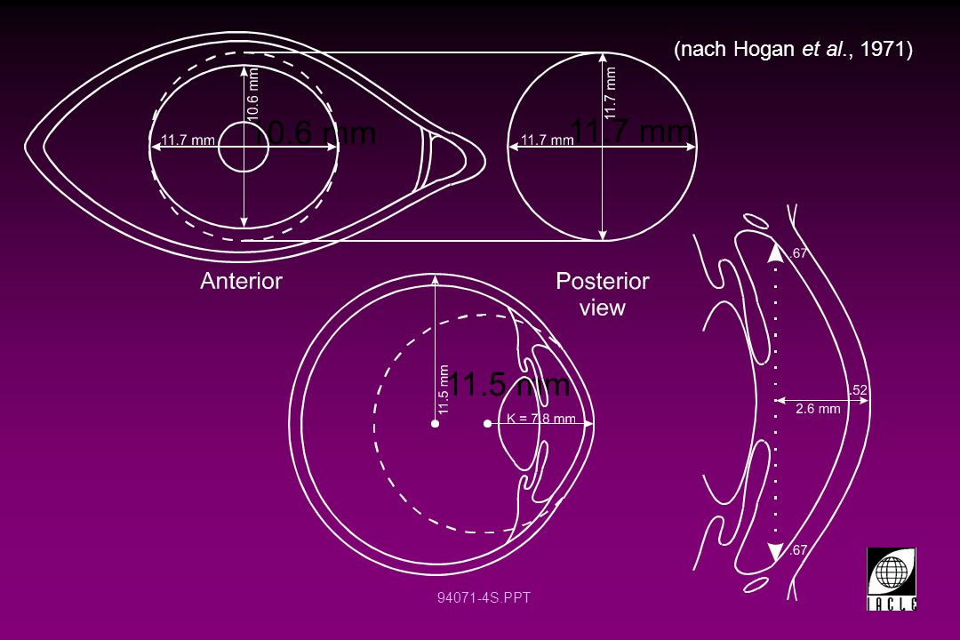 94071-5S.PPT Die cornea (Hornhaut HH) ist nicht symmetrisch und die Krümmung der Hornhaut flacht nach außen ab.