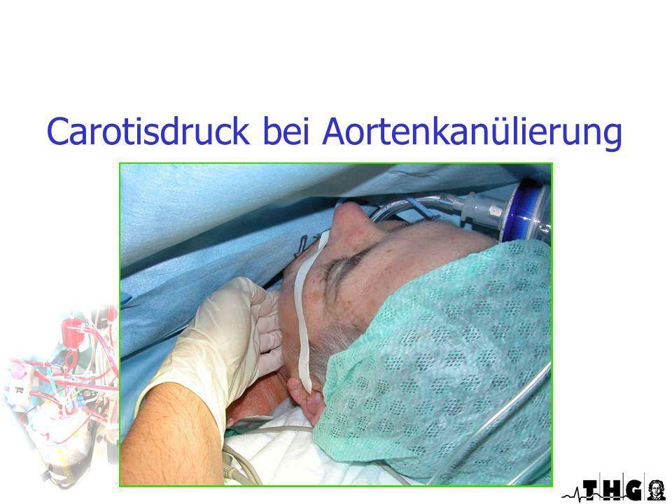 Carotisdruck bei Aortenkanülierung Optimierte EKZ