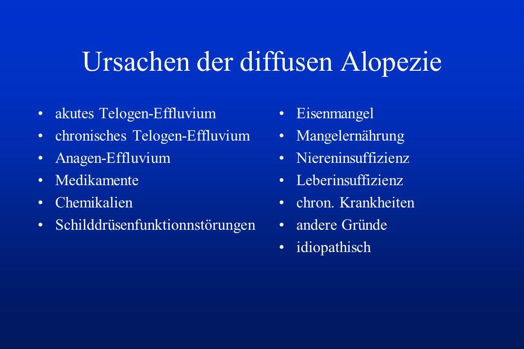 Ursachen der diffusen Alopezie akutes Telogen-Effluvium chronisches Telogen-Effluvium Anagen-Effluvium Medikamente Chemikalien Schilddrüsenfunktionnst