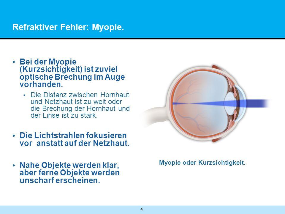 4 Refraktiver Fehler: Myopie. Bei der Myopie (Kurzsichtigkeit) ist zuviel optische Brechung im Auge vorhanden. Die Distanz zwischen Hornhaut und Netzh