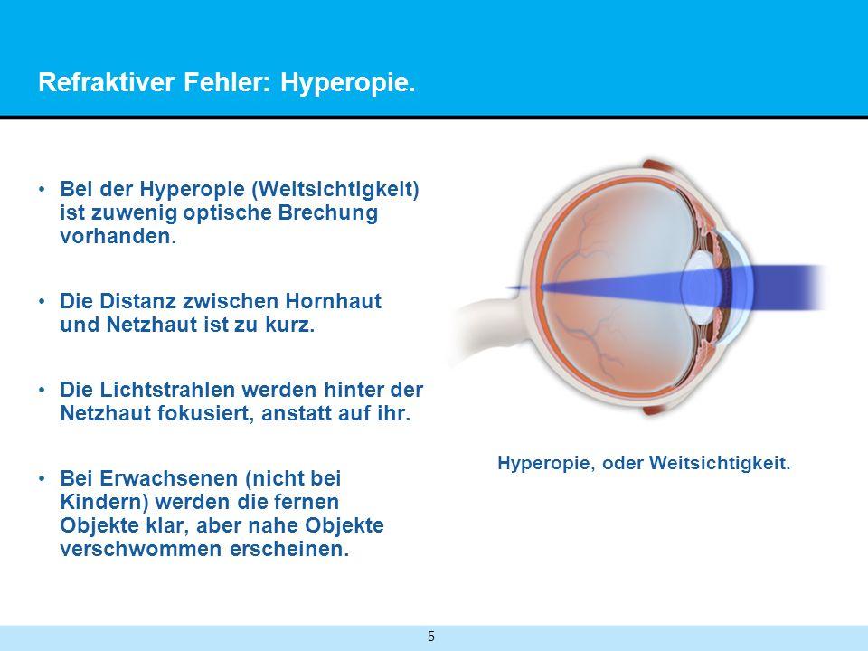 5 Refraktiver Fehler: Hyperopie. Bei der Hyperopie (Weitsichtigkeit) ist zuwenig optische Brechung vorhanden. Die Distanz zwischen Hornhaut und Netzha