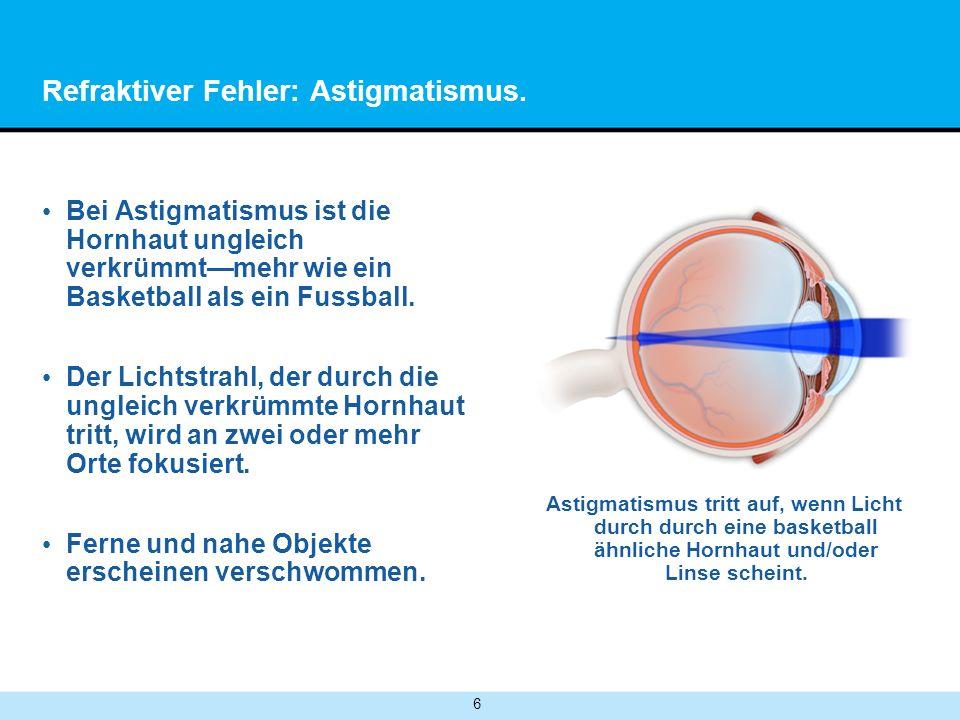 6 Refraktiver Fehler: Astigmatismus. Bei Astigmatismus ist die Hornhaut ungleich verkrümmtmehr wie ein Basketball als ein Fussball. Der Lichtstrahl, d