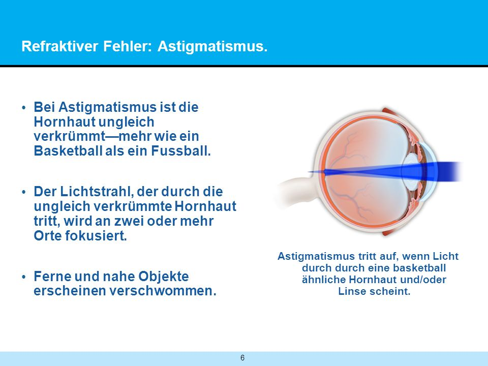 7 Refraktionsfehler: Presbyopie.