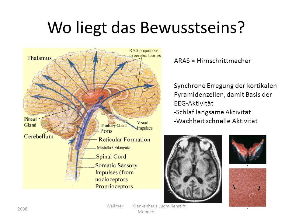 Pathologie des PVS traumatisch oder nicht-traumatisch Läsionen, die diffus den Kortex, Thalamus (bevorzugt dorsomediale und ventral posteriore Kerngebiete) oder dessen Projektionen zum Kortex schädigen, jedoch den Hirnstamm und Hypothalamus weitgehend intakt lassen 2008 Wellmer Krankenhaus Ludmillenstift Meppen