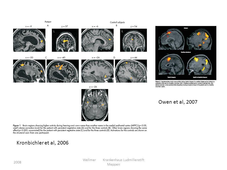 2008 Wellmer Krankenhaus Ludmillenstift Meppen Owen et al, 2007 Kronbichler et al, 2006