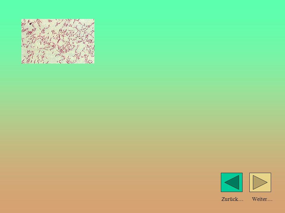Weiter…Zurück… Bodenlebewesen: Vielen Bodenlebewesen fehlen die Augen. Oft sind sie weiß gefärbt. (Es fehlen die Hautpigmente zum Schutz vor der Sonne