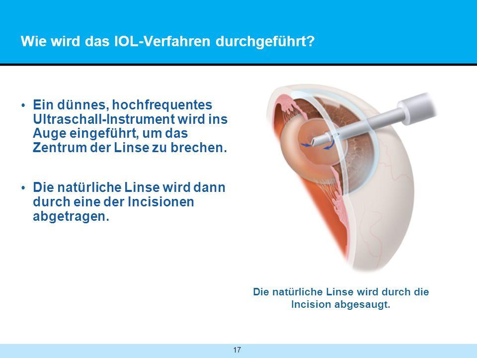 17 Wie wird das IOL-Verfahren durchgeführt.