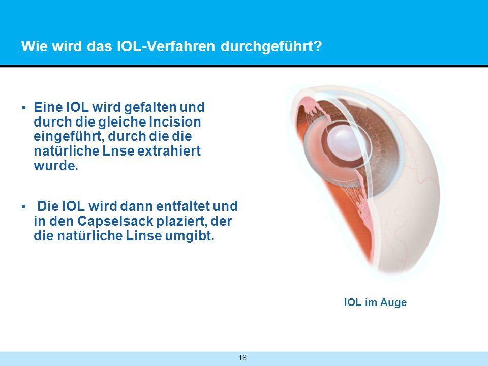 18 Wie wird das IOL-Verfahren durchgeführt.