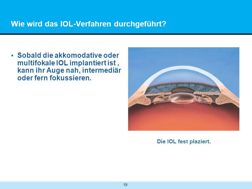 19 Wie wird das IOL-Verfahren durchgeführt.