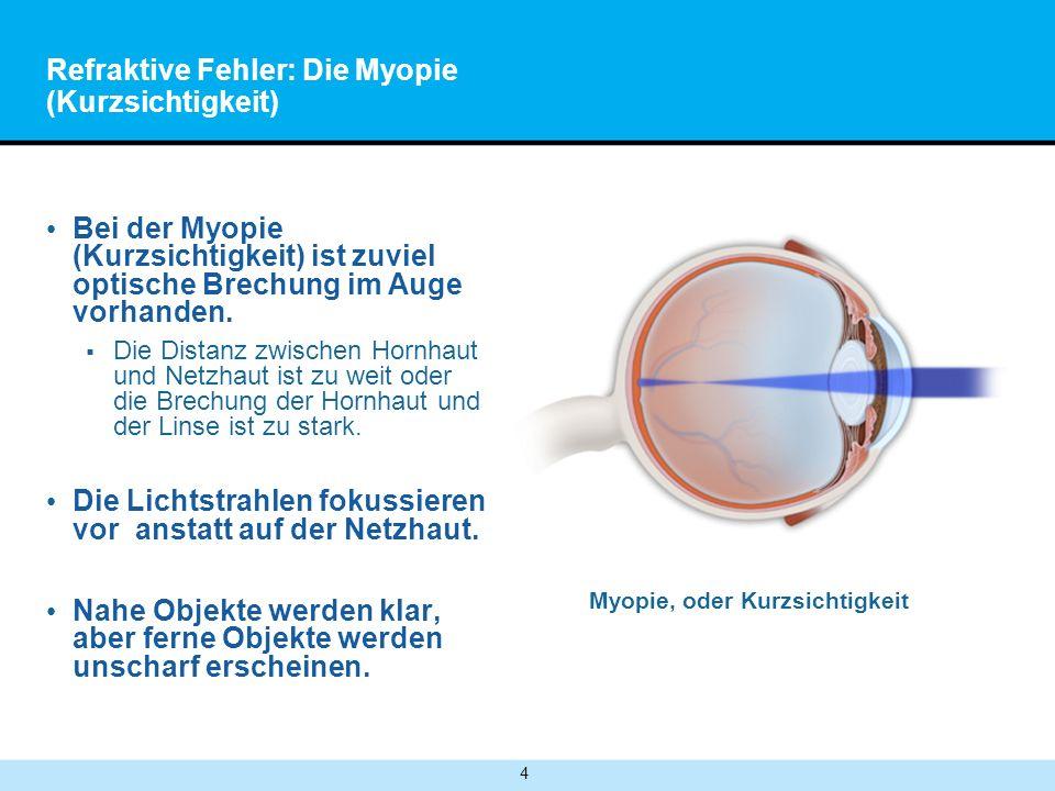 4 Refraktive Fehler: Die Myopie (Kurzsichtigkeit) Bei der Myopie (Kurzsichtigkeit) ist zuviel optische Brechung im Auge vorhanden.