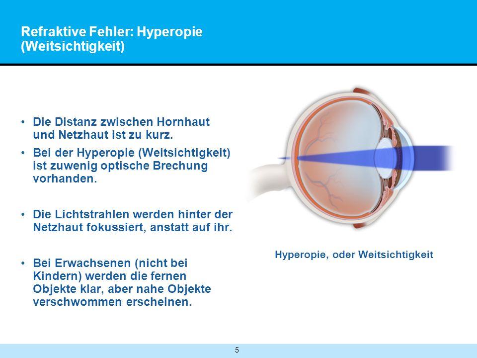 5 Refraktive Fehler: Hyperopie (Weitsichtigkeit) Die Distanz zwischen Hornhaut und Netzhaut ist zu kurz.