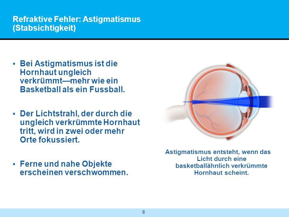 6 Refraktive Fehler: Astigmatismus (Stabsichtigkeit) Bei Astigmatismus ist die Hornhaut ungleich verkrümmtmehr wie ein Basketball als ein Fussball.
