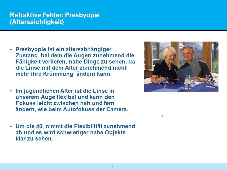 7 Refraktive Fehler: Presbyopie (Alterssichtigkeit) Presbyopie ist ein altersabhängiger Zustand, bei dem die Augen zunehmend die Fähigkeit verlieren, nahe Dinge zu sehen, da die Linse mit dem Alter zunehmend nicht mehr ihre Krümmung ändern kann.