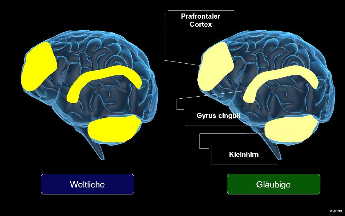 Gläubige Weltliche Präfrontaler Cortex Kleinhirn Gyrus cinguli