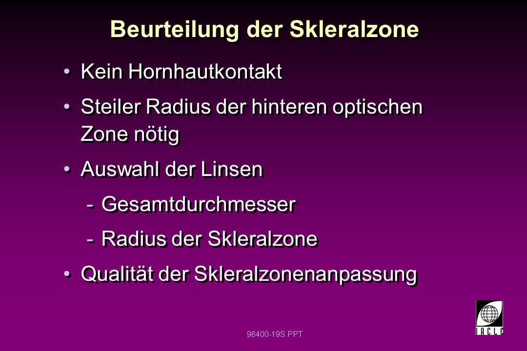 98400-19S.PPT Beurteilung der Skleralzone Kein Hornhautkontakt Steiler Radius der hinteren optischen Zone nötig Auswahl der Linsen -Gesamtdurchmesser