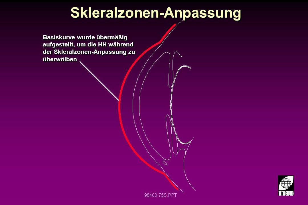 98400-75S.PPT Skleralzonen-Anpassung Basiskurve wurde übermäßig aufgesteilt, um die HH während der Skleralzonen-Anpassung zu überwölben