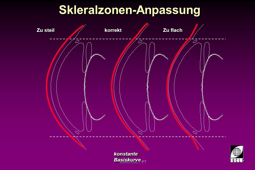 98400-85S.PPT Skleralzonen-Anpassung Zu steil korrekt Zu flach konstante Basiskurve
