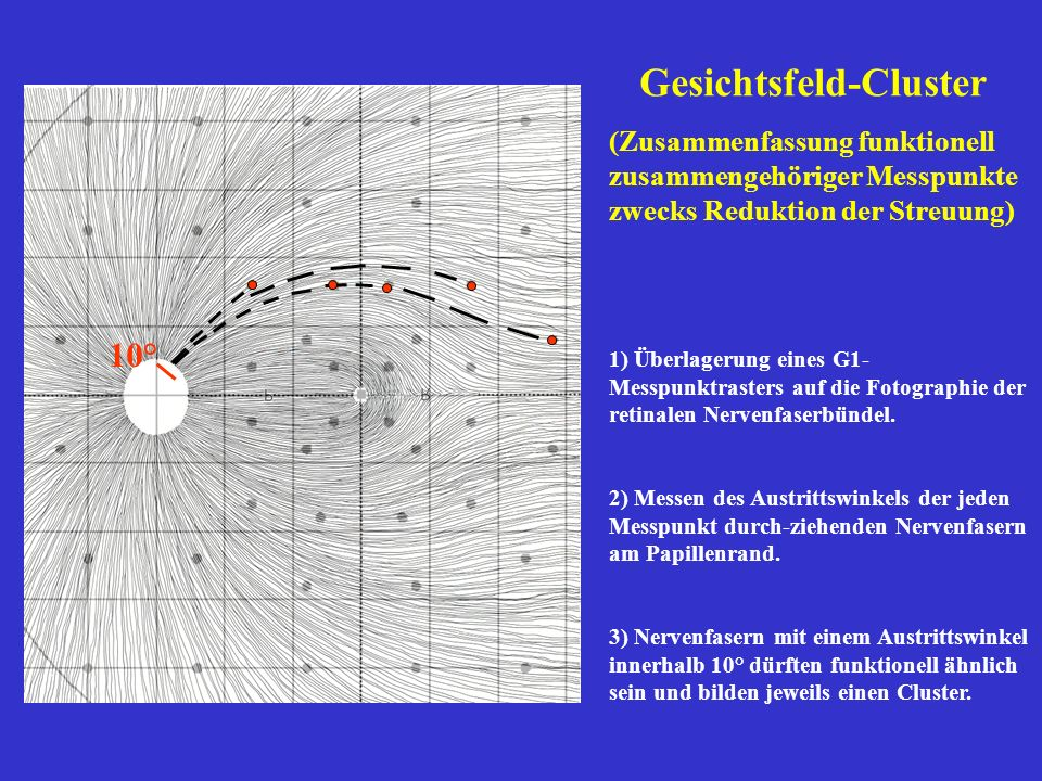Gesichtsfeld-Cluster (Zusammenfassung funktionell zusammengehöriger Messpunkte zwecks Reduktion der Streuung) 1) Überlagerung eines G1- Messpunktraste