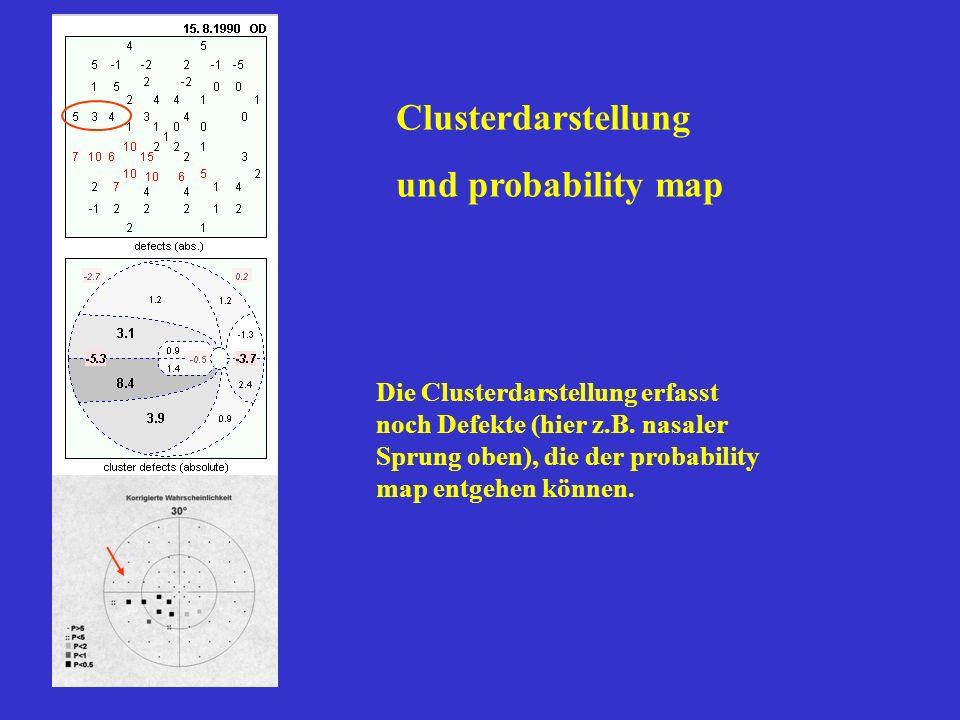 Clusterdarstellung und probability map Die Clusterdarstellung erfasst noch Defekte (hier z.B. nasaler Sprung oben), die der probability map entgehen k