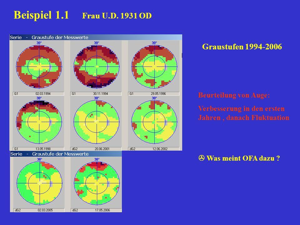 Beurteilung von Auge: Verbesserung in den ersten Jahren, danach Fluktuation Was meint OFA dazu ? Beispiel 1.1 Frau U.D. 1931 OD Graustufen 1994-2006