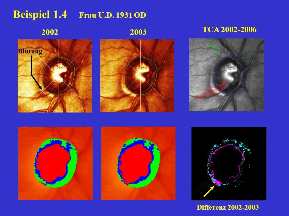 20032002 TCA 2002-2006 Blutung Differenz 2002-2003 Beispiel 1.4 Frau U.D. 1931 OD