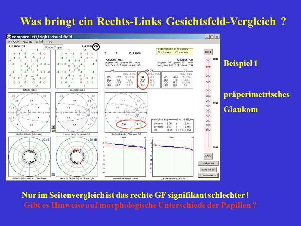Beispiel 1 präperimetrisches Glaukom Nur im Seitenvergleich ist das rechte GF signifikant schlechter ! Gibt es Hinweise auf morphologische Unterschied