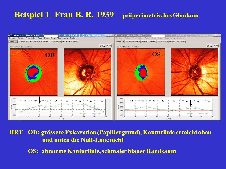 Beispiel 1 Frau B. R. 1939 präperimetrisches Glaukom OD OS HRTOD: grössere Exkavation (Papillengrund), Konturlinie erreicht oben und unten die Null-Li