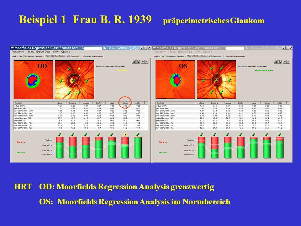 Beispiel 1 Frau B. R. 1939 präperimetrisches Glaukom HRTOD: Moorfields Regression Analysis grenzwertig OS: Moorfields Regression Analysis im Normberei