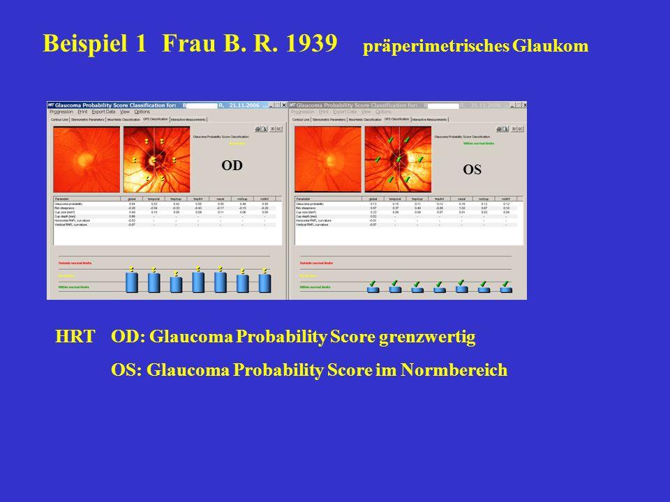 Beispiel 1 Frau B. R. 1939 präperimetrisches Glaukom HRTOD: Glaucoma Probability Score grenzwertig OS: Glaucoma Probability Score im Normbereich OD OS