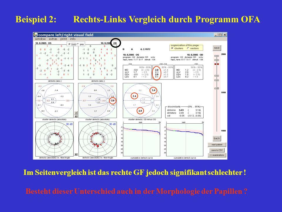 Beispiel 2: Rechts-Links Vergleich durch Programm OFA Im Seitenvergleich ist das rechte GF jedoch signifikant schlechter ! Besteht dieser Unterschied