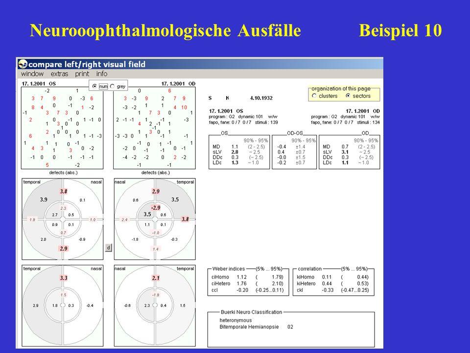 Neurooophthalmologische AusfälleBeispiel 10