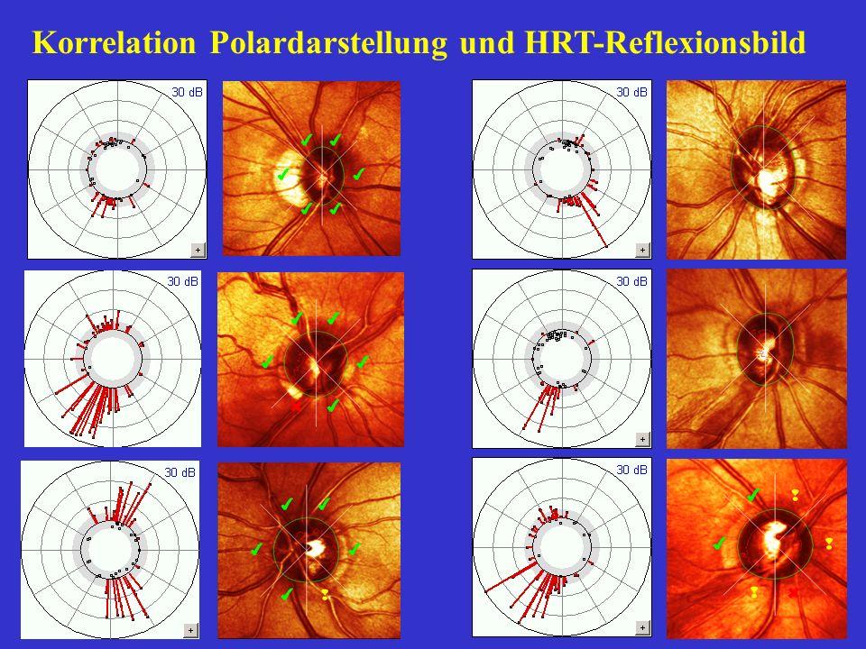 Beispiel 1 präperimetrisches Glaukom Nur im Seitenvergleich ist das rechte GF signifikant schlechter .