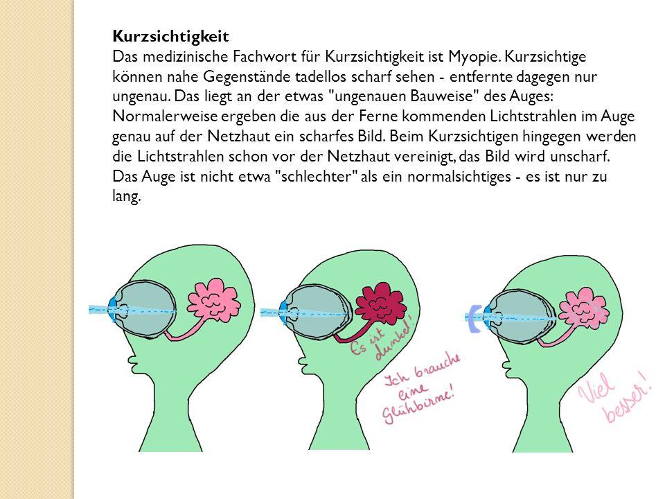 Kurzsichtigkeit Das medizinische Fachwort für Kurzsichtigkeit ist Myopie.