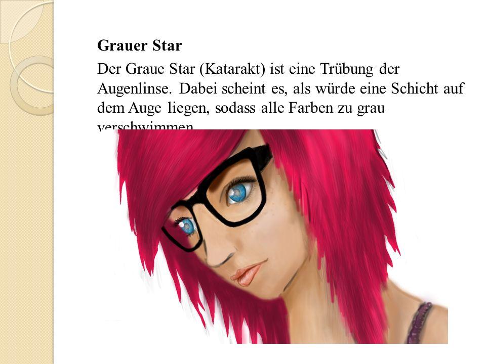 Grauer Star Der Graue Star (Katarakt) ist eine Trübung der Augenlinse.