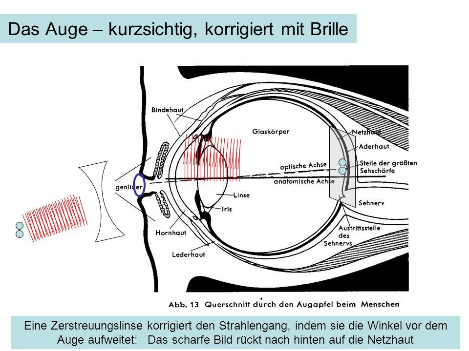 Das Auge – kurzsichtig, korrigiert mit Brille Eine Zerstreuungslinse korrigiert den Strahlengang, indem sie die Winkel vor dem Auge aufweitet: Das sch