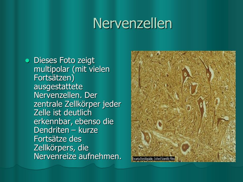 Nervenzellen Dieses Foto zeigt multipolar (mit vielen Fortsätzen) ausgestattete Nervenzellen.