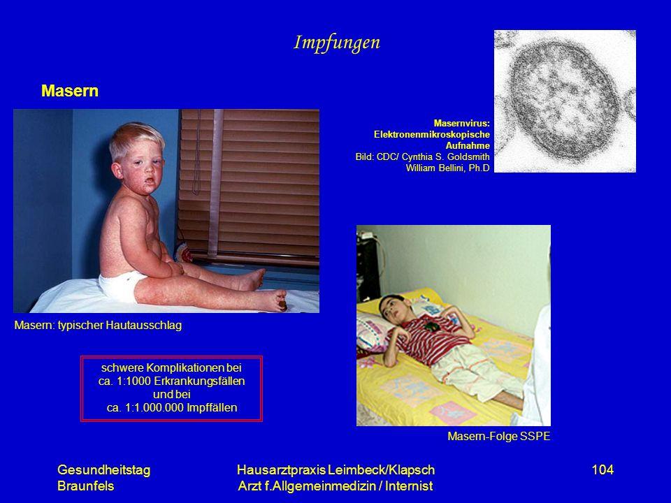 Gesundheitstag Braunfels Hausarztpraxis Leimbeck/Klapsch Arzt f.Allgemeinmedizin / Internist 104 Impfungen Masern Masern-Folge SSPE Masern: typischer