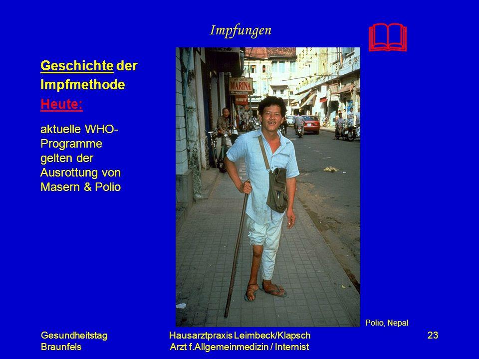 Gesundheitstag Braunfels Hausarztpraxis Leimbeck/Klapsch Arzt f.Allgemeinmedizin / Internist 23 Impfungen Geschichte der Impfmethode Heute: Polio, Nep