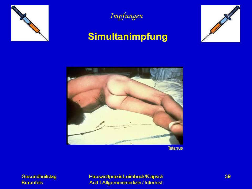 Gesundheitstag Braunfels Hausarztpraxis Leimbeck/Klapsch Arzt f.Allgemeinmedizin / Internist 39 Impfungen Simultanimpfung Tetanus
