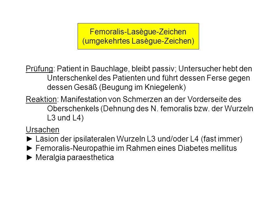 Femoralis-Lasègue-Zeichen (umgekehrtes Lasègue-Zeichen) Prüfung: Patient in Bauchlage, bleibt passiv; Untersucher hebt den Unterschenkel des Patienten
