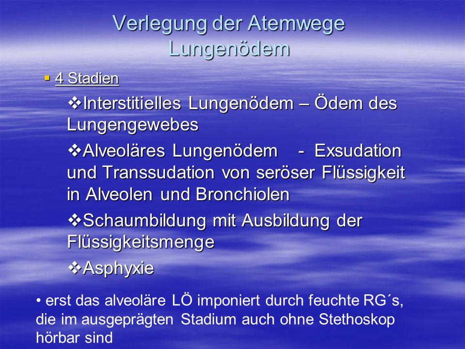 4 Stadien 4 Stadien Interstitielles Lungenödem – Ödem des Lungengewebes Interstitielles Lungenödem – Ödem des Lungengewebes Alveoläres Lungenödem - Ex