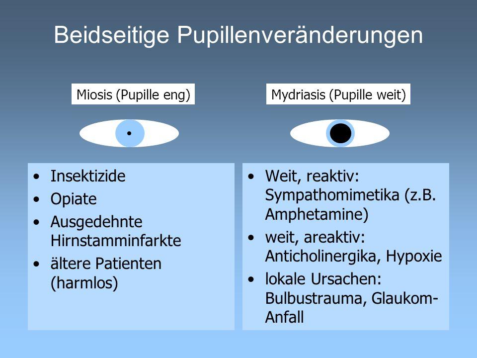 Beidseitige Pupillenveränderungen Insektizide Opiate Ausgedehnte Hirnstamminfarkte ältere Patienten (harmlos) Weit, reaktiv: Sympathomimetika (z.B. Am