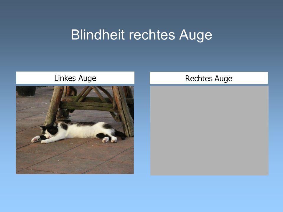 Blindheit rechtes Auge Linkes Auge Rechtes Auge