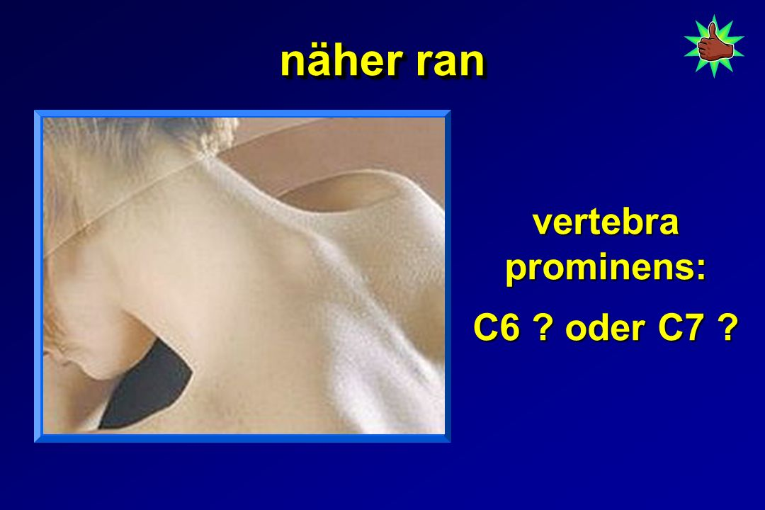 näher ran vertebra prominens: C6 ? oder C7 ?