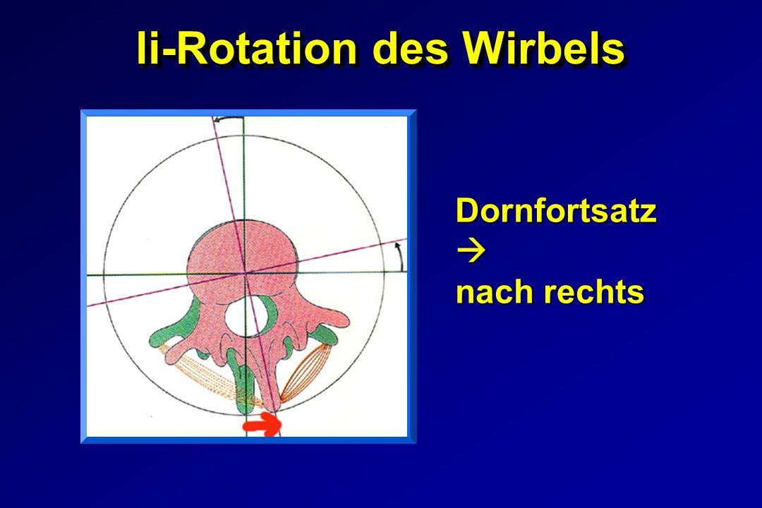 li-Rotation des Wirbels Dornfortsatz Dornfortsatz nach rechts