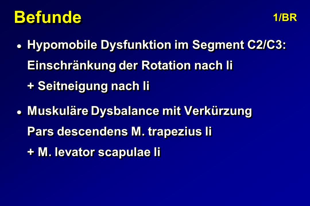 BefundeBefunde l Hypomobile Dysfunktion im Segment C2/C3: Einschränkung der Rotation nach li + Seitneigung nach li l Muskuläre Dysbalance mit Verkürzung Pars descendens M.