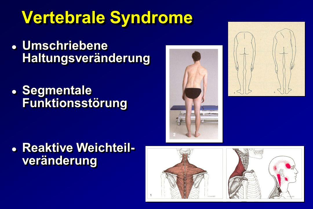 Vertebrale Syndrome Vertebrale Syndrome l Umschriebene Haltungsveränderung l Segmentale Funktionsstörung l Reaktive Weichteil- veränderung l Umschriebene Haltungsveränderung l Segmentale Funktionsstörung l Reaktive Weichteil- veränderung