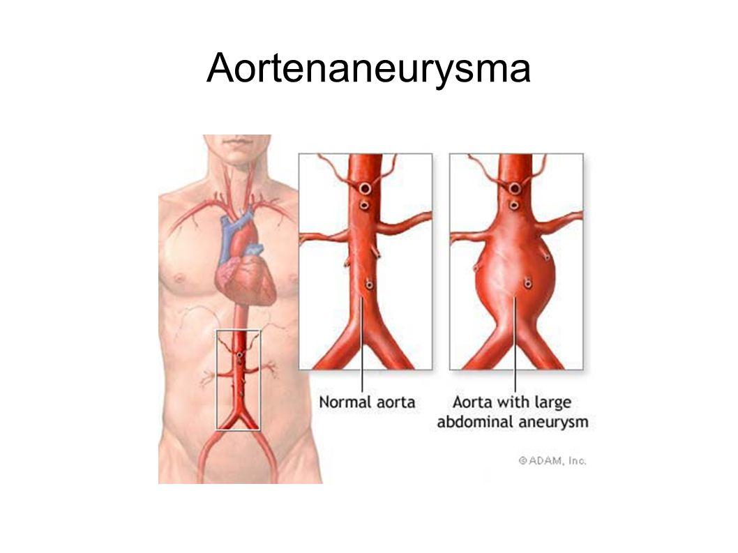 Durchführung Angio -Bilderstellung -Patientenbetreuung -Untersuchungsende -Bildausarbeitung