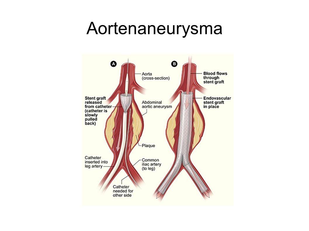 Angiographie Therapeutisch: -Embolisation -Dilatation -Stent -Drainagen