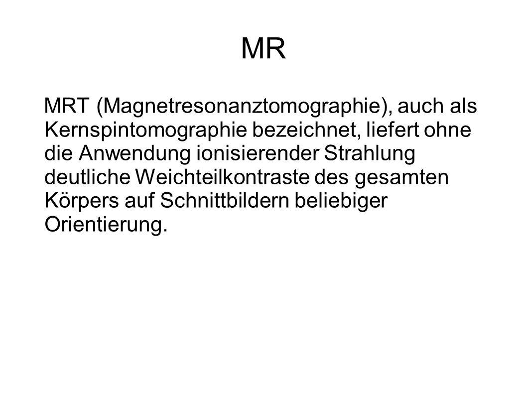 MRT (Magnetresonanztomographie), auch als Kernspintomographie bezeichnet, liefert ohne die Anwendung ionisierender Strahlung deutliche Weichteilkontra